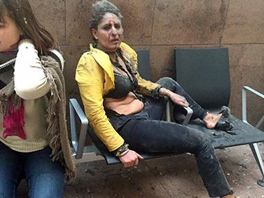 Nidhi Chaphekar, after being wounded in Brussels Airport in Brussels, Belgium. Ketevan Kardava/ Georgian Public Broadcaster via AP