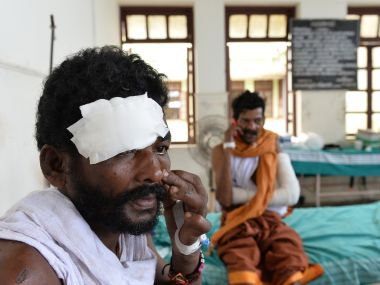 At least over 400 people were injured in the fire tragedy at the Puttingal temple in Kollam. AFP
