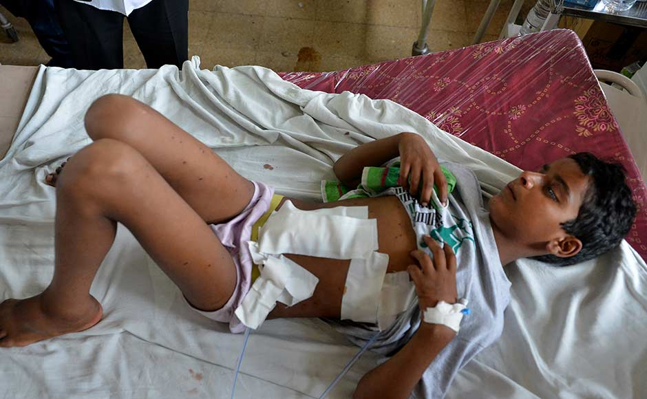 A Kashmiri boy lies on a hospital bed after being hit by pellets fired by Indian security forces during a protest, at a hospital in Srinagar on July 13, 2016. Hospitals in Kashmir are overwhelmed, with hundreds of wounded patients pouring in as the region reels from days of clashes between anti-India protesters and government troops.