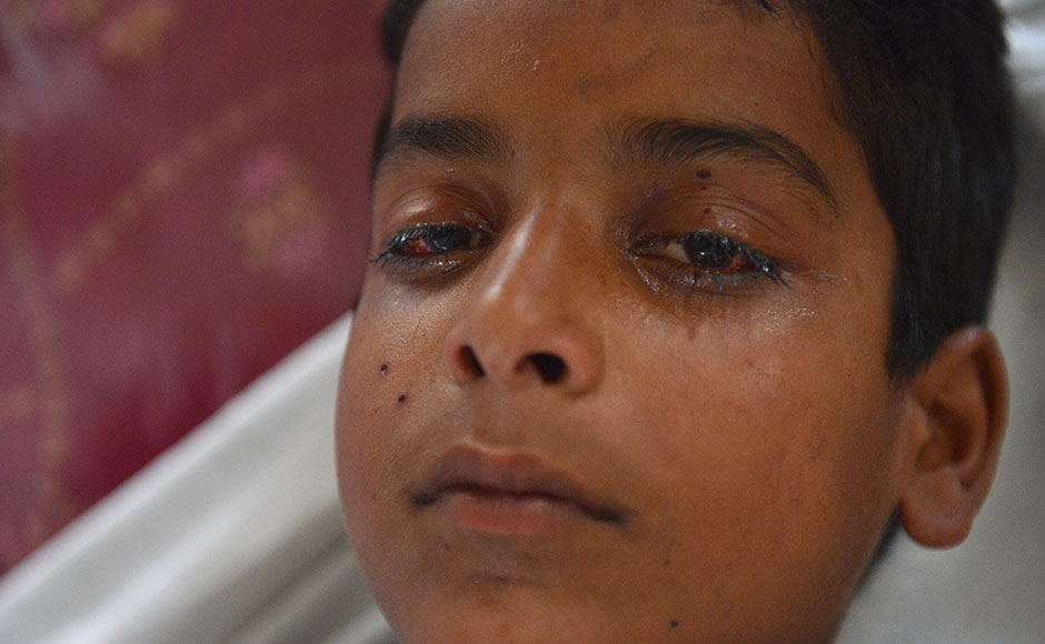 A wounded Kashmiri boy, with an injured eye, lies on a hospital bed after being hit by pellets fired by Indian security forces during a protest, at a hospital in Srinagar on July 13, 2016. Hospitals in Kashmir are overwhelmed, with hundreds of wounded patients pouring in as the region reels from days of clashes between anti-India protesters and government troops.