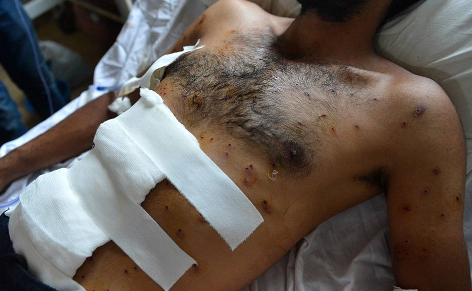 A wounded Kashmiri muslim lies on a bed, after being hit by pellets during a protest, at a hospital in Srinagar on July 13, 2016. Hospitals in Kashmir are overwhelmed, with hundreds of wounded patients pouring in as the region reels from days of clashes between anti-India protesters and government troops.