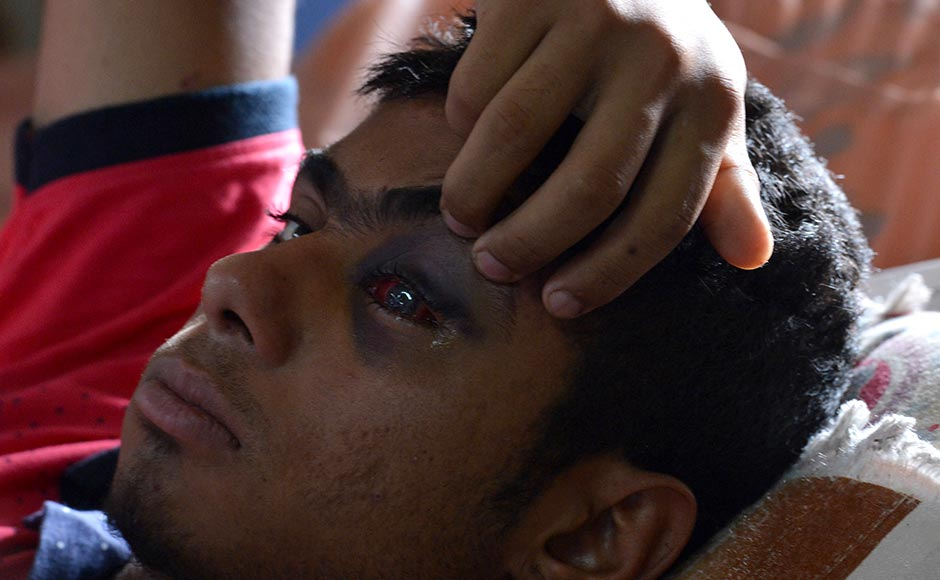 A wounded Kashmiri boy, displays his damaged eye as he lies on a hospital bed after being hit by pellets fired by Indian security forces during a protest, at a hospital in Srinagar on July 13, 2016. Hospitals in Kashmir are overwhelmed, with hundreds of wounded patients pouring in as the region reels from days of clashes between anti-India protesters and government troops.