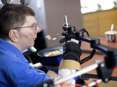 Bill Kochevar, 56, is using computer-brain interface technology and an electrical stimulation system to move his own arm. Reuters