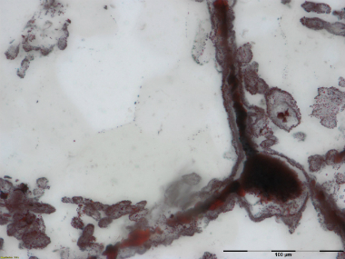 Microscope image shows a filament attached to a clump of iron at lower right in rock found in Quebec, Canada. AP