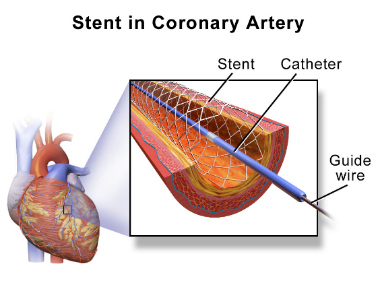Companies are pulling out stents from the markets after NPPA regulation. Image courtesy Wikipedia